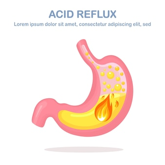 Gastroesophageal reflux disease illustration