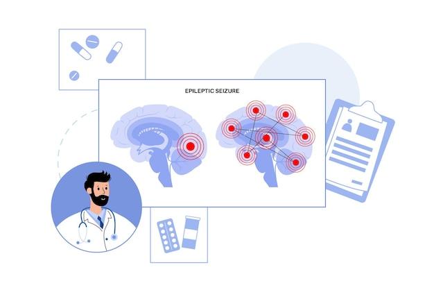전신 및 부분 발작. 간질 및 비정상적인 뇌 활동. 의료 연구 벡터