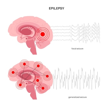 Generalized and partial seizure. epilepsy and abnormal brain activity. medical research vector