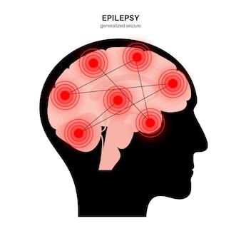 Generalized seizure. epilepsy disease. abnormal brain activity. pain or spasm in human head