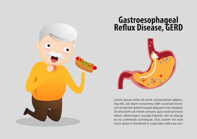 胃食道逆流症(gerd)