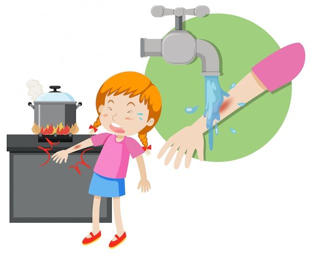 A girl first aid burn
