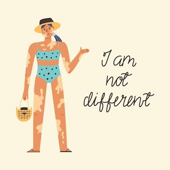 白斑の女の子の水着、財布、帽子。ボディポジティブ、自己愛、色素脱失疾患、あなたの体を受け入れる。国際白斑の日。フラット手描きスタイルのモダンなベクトルイラスト