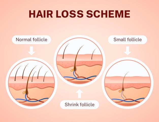 Схема градиентного выпадения волос
