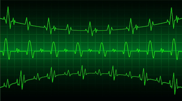 Green heart pulse monitor with signal. heart beat wave