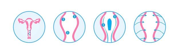 膣炎坐剤の婦人科インフォグラフィック治療