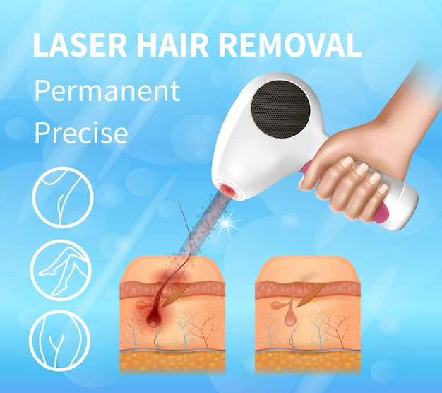 Hair laser removal, permanent precise banner.