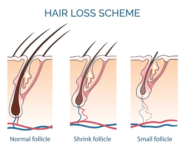 脱毛スキーム。抜け毛、成長毛の問題、健康な髪。ベクトルイラスト