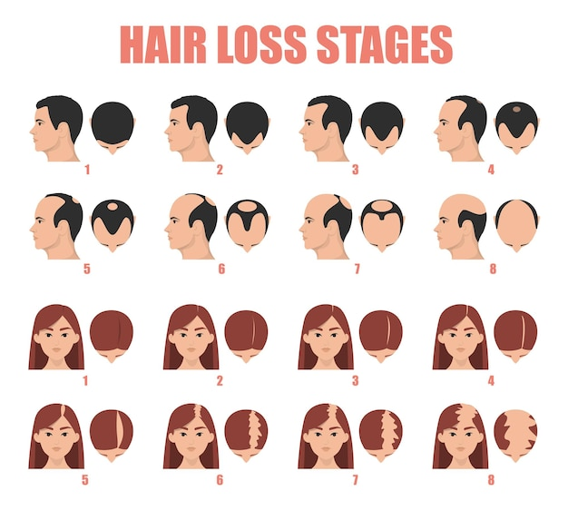Hair loss stages of female and male alopecia Premium Vector