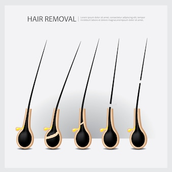 Hair removal example illustration