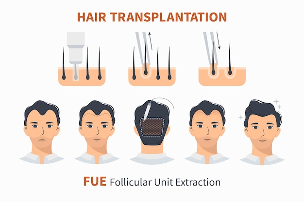 Hair transplantation fue follicular unit extraction