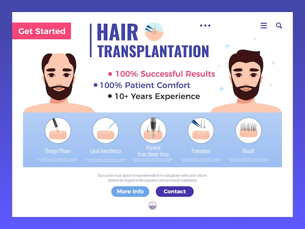 Hair transplantation web banner with infographics advertising and interface elements on white