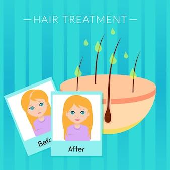 Hair treatment illustration