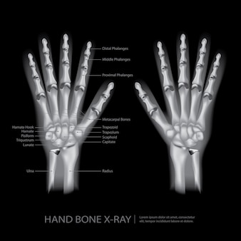 Hand bone x-ray vector illustration