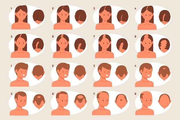 Hand drawn hair loss stages