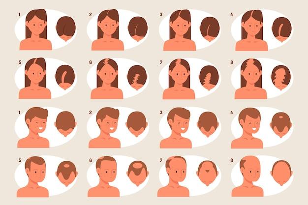 Fasi di perdita di capelli disegnati a mano