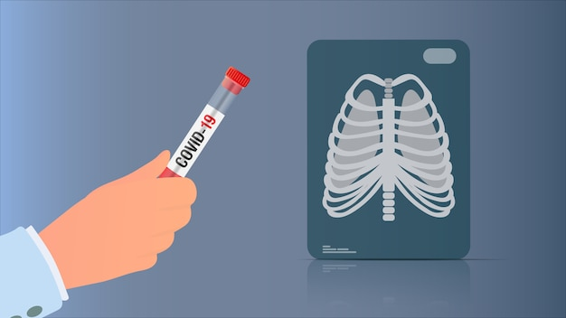 Рука держит тест от коронавируса. рентген легких. пробирка с тестом на коронавирус. иллюстрации.