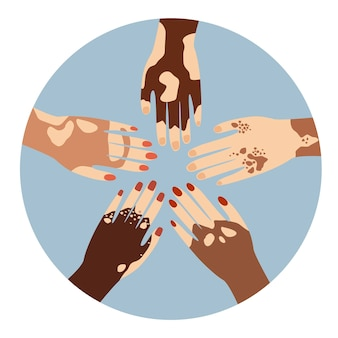 皮膚病の色素脱失の問題でさまざまなジェスチャーでさまざまな民族を手渡します