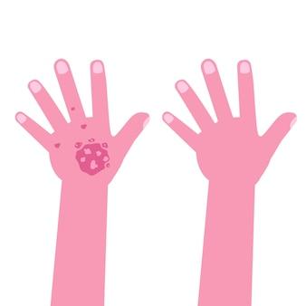 治療前後の乾癬のある手
