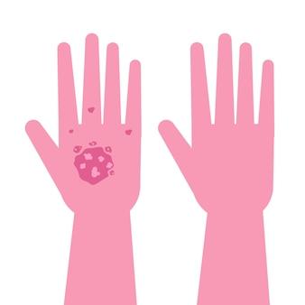 치료 전후에 건선이있는 손