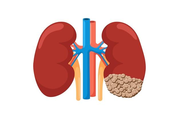 암에 걸린 건강하고 아픈 신장. 인체 해부학적 비뇨생식기 계통 내부의 건강하지 못한 종양 신생물 기관과 강한 비교. 벡터 종양학 그림