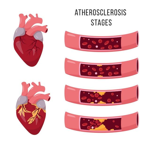 건강하고 건강에 해로운 심장 및 동맥