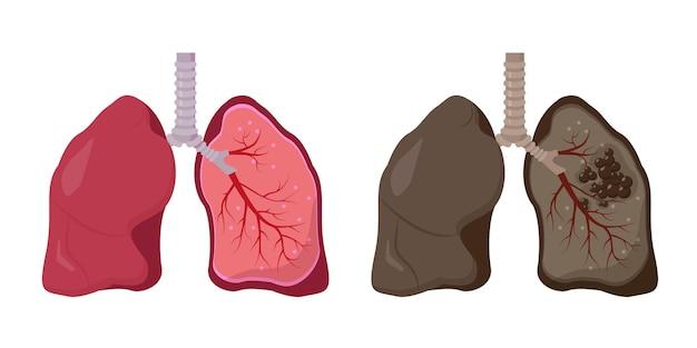 건강하고 건강에 해로운 인간의 폐. 정상 폐암 대 폐암.