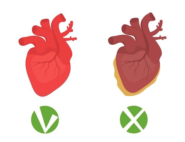 건강한 심장과 건강에 해로운 심장 지방 인포 그래픽.