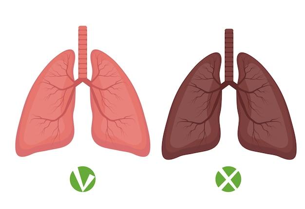 건강한 폐 및 폐 질환 또는 흡연자 infographics 흰색 배경에 고립.