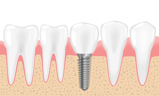 Healthy realistic teeth and dental implant