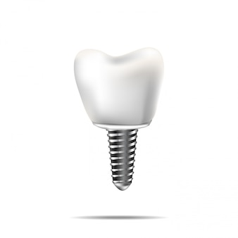 Здоровые зубы и зубной имплантат. реалистичная иллюстрация зубной медицины