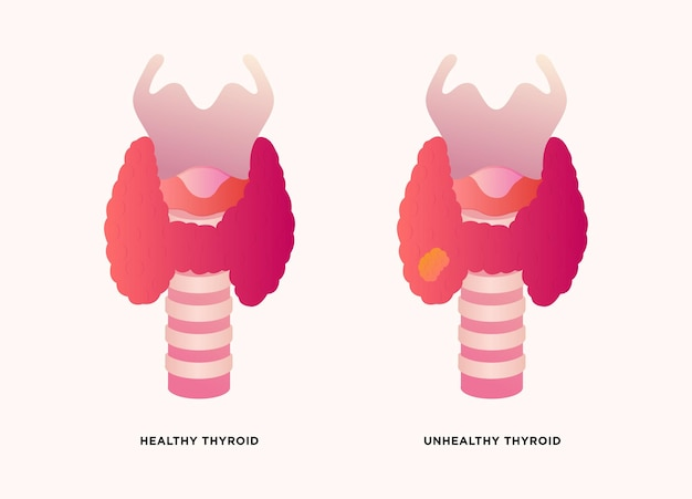 Healthy thyroid gland and unhealthy thyroid with inflammation and lump