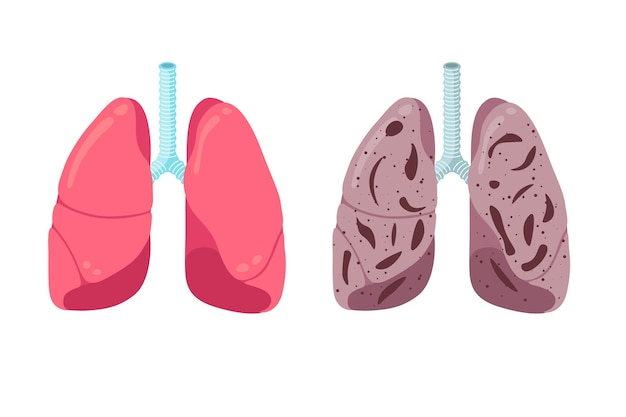 Healthy and unhealthy lungs compare concept human respiratory system internal organ strong and
