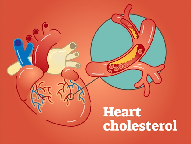 Heart cholesterol concept