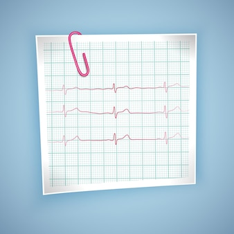 Heart pulse graphic. ekg heartbeat