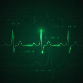 Пульс сердца на зеленом дисплее. график сердцебиения или кардиограмма.