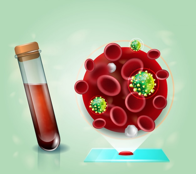 Hiv virus blood test realistic vector concept