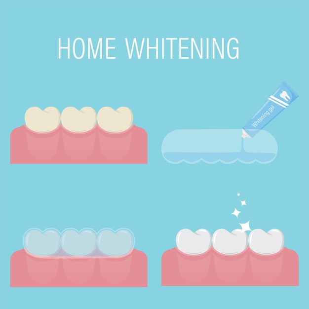 Home teeth whitening consecutive stages of bleaching with gel and mouthguard at home.before after