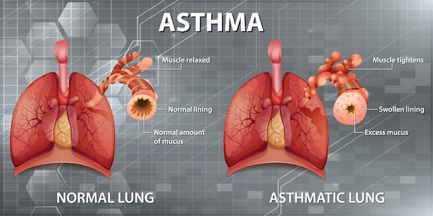 Human anatomy asthma diagram