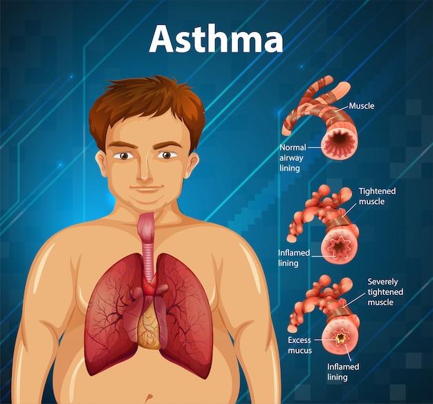 Schema di asma di anatomia umana