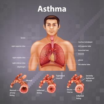 Диаграмма астмы анатомии человека