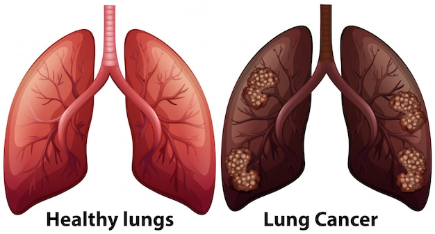 폐 상태의 인체 해부학