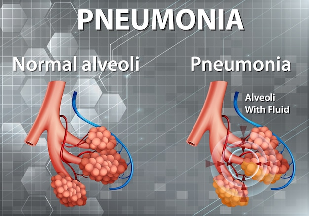 Human anatomy showing pneumonia