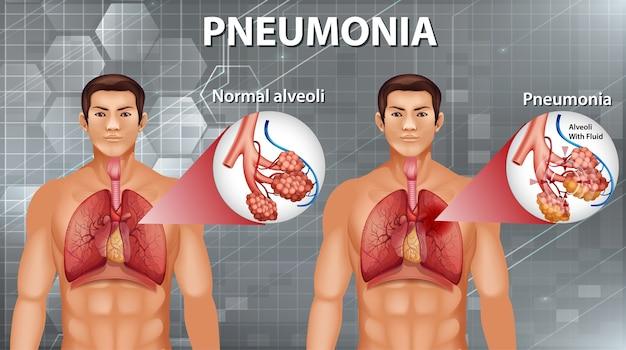 Анатомия человека, показывающая пневмонию