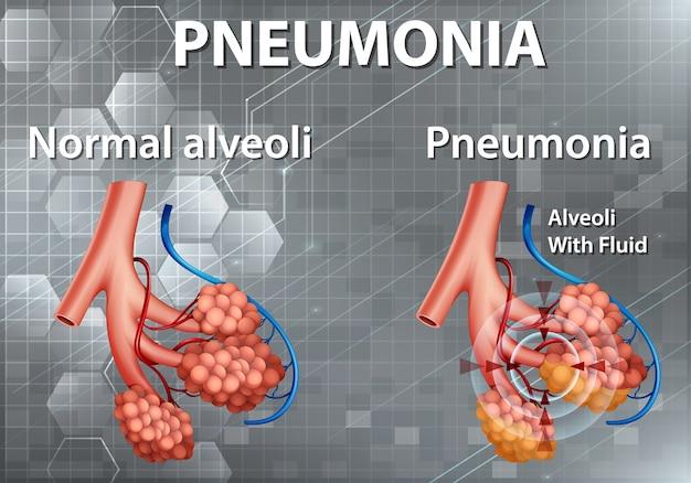 肺炎を示す人体解剖学