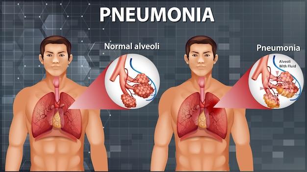 폐렴을 보여주는 인체 해부학