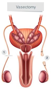 Human anatomy of  vasectomy on white background