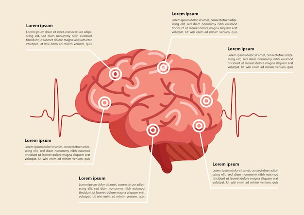 Human brain stroke illustration