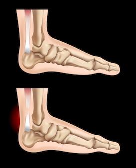 힘줄의 인간 발과 부상