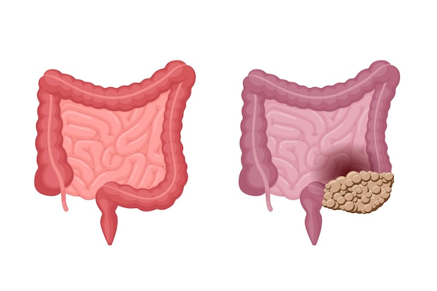 結腸癌の比較腹腔を伴う強い健康および不健康な人間の腸の解剖学
